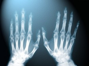Top 10 Medical Breakthroughs - X - Rays